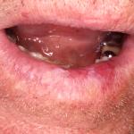 queilitis actinica crónica